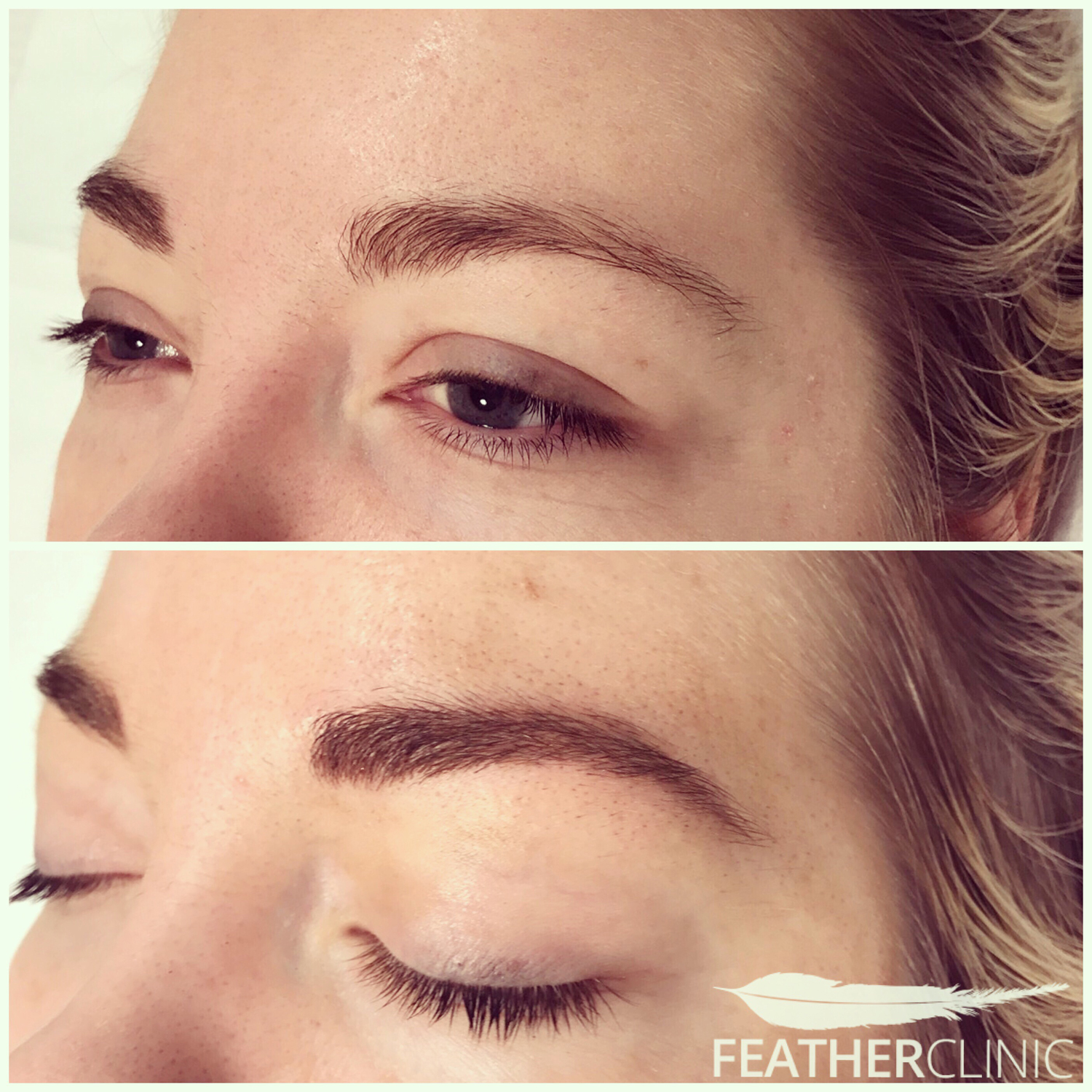 Feather touch brows before and after pics | Feather Clinic